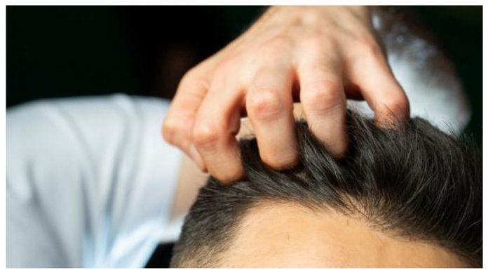 Hair Transplant That Looks Natural